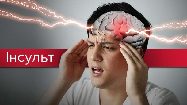 29 жовтня – Всесвітній день боротьби з інсультом. Як убезпечити себе від «хвороби останніх десятиліть»?