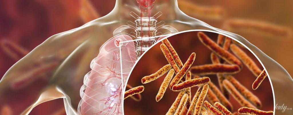 Туберкульоз не дрімає