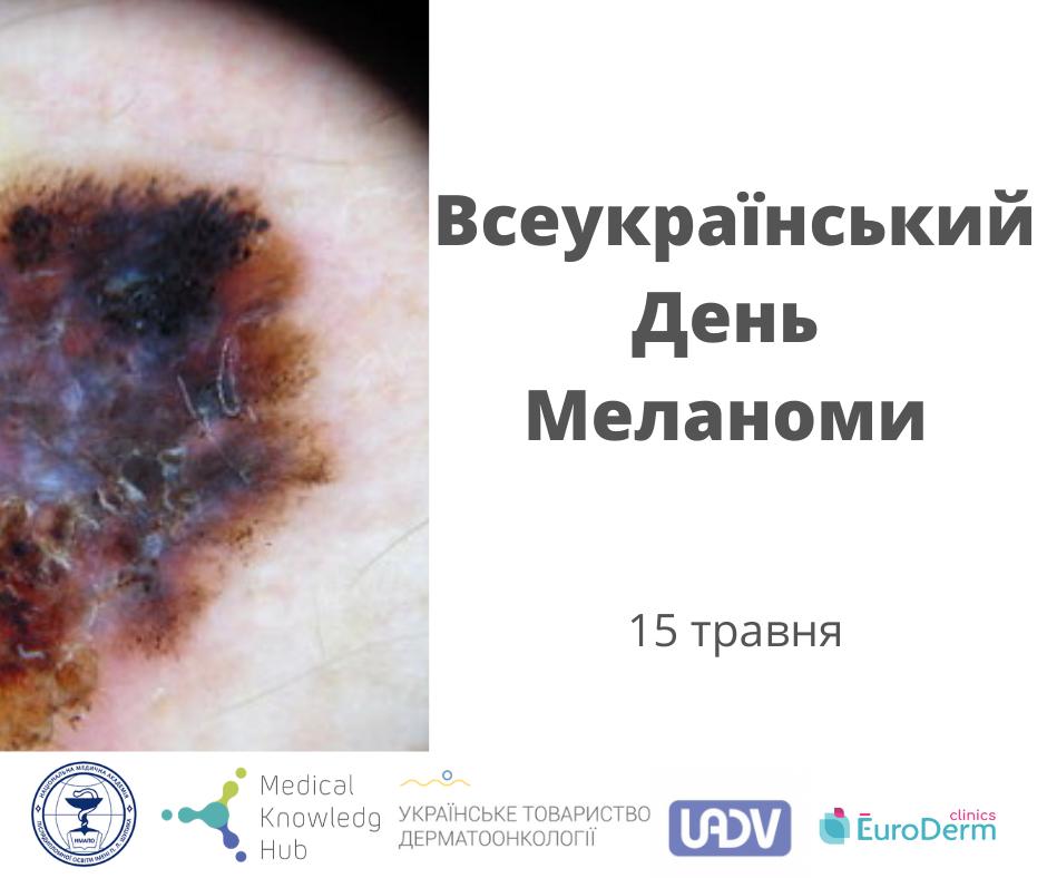 Своєчасно діагностувати та лікувати: 15 травня – Всеукраїнський день меланоми.